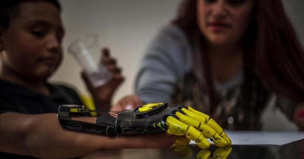 Une entreprise française crée des prothèses en silicone avec des imprimantes 3D